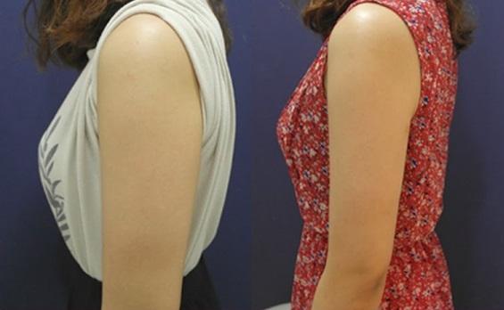 ウデセレブの悪い口コミは?二の腕痩せの効果が話題のウデセレブを0円の最安値で試そう!