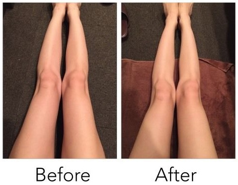 もう大根足なんて言わせない!おブスな大根脚を改善するセルライトの解消法を紹介!