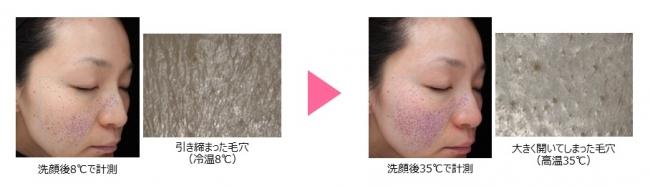 米肌の毛穴ケアの口コミは?夏は毛穴の開きが倍に!?皮脂も出まくる汚肌をキレイにする簡単な肌対策を紹介♪